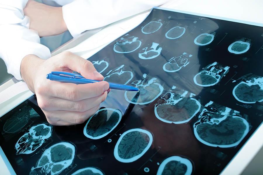Neurologia i Neurologia Dziecięca